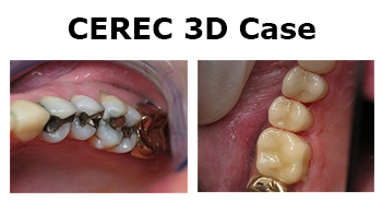 cerec 3d case